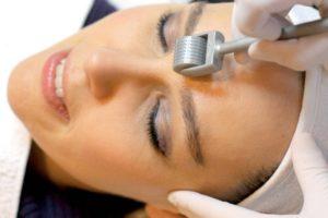 микронидлинг кожи лица